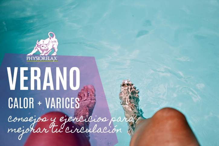 varices tratamiento natural